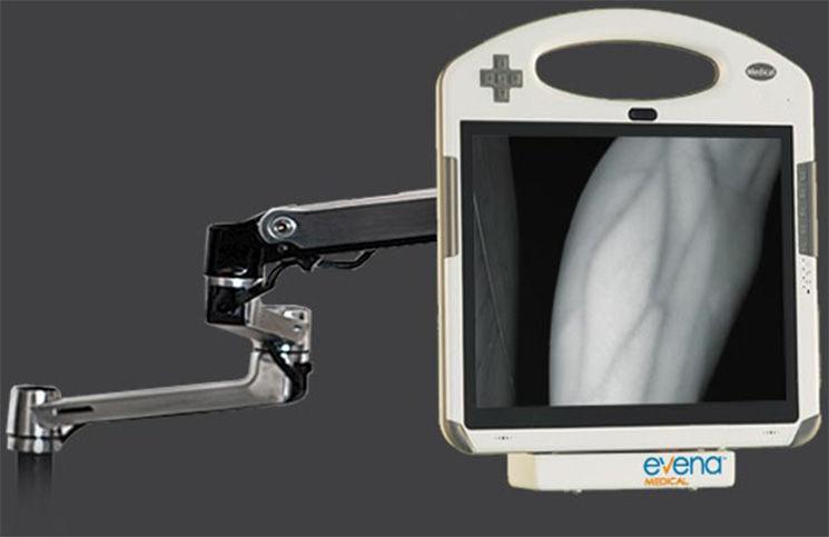 Снимка/Evena Medical